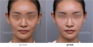 Before After Image of Cheek Fillers