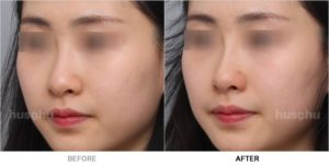 Before After Image of Nose Fillers