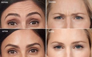 Before & After pictures of Botox patient
