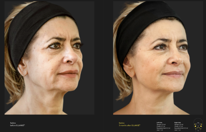 Before and After photo of Ellansé user