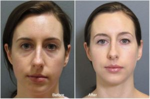 Before and After photos of fillers user for the under eyes
