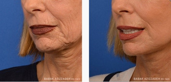 Before and After photos showing effectiveness of laser skin rejuvenation in reducing turkey neck and wrinkles.
