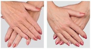 Before and after photos of botox injected into wrinkled hands