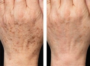 Before and after photos of laser skin rejuvenation used to treat age spots