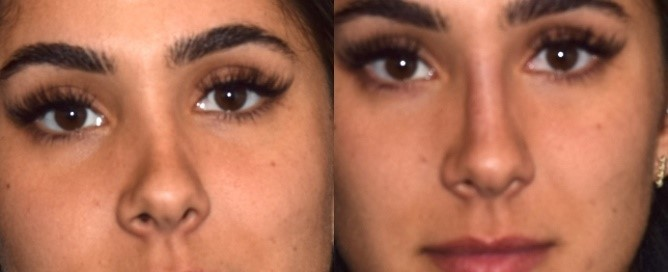 Before and after photos of nose threading