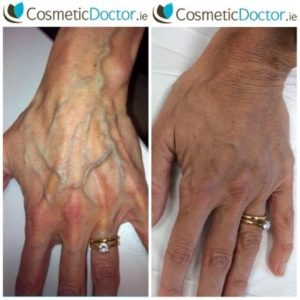 Before and after picture of hands of filler user
