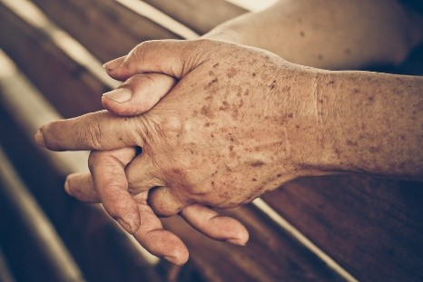 Hands with aged spots