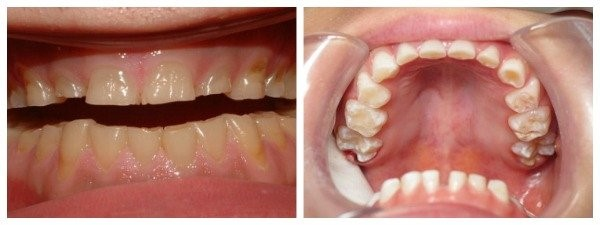 Impact of teeth grinding