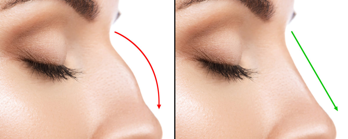 Nose Fillers All You Need To Know - drwongks.com